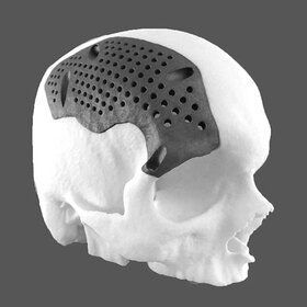 3D printed cranial implant
